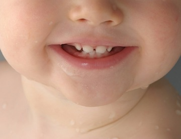 Baby teeth are helping autism researchers understand the condition.