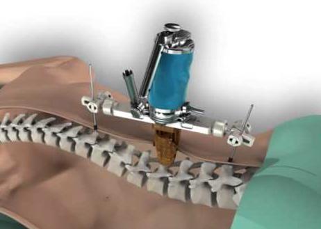 Mazor Robotics spine surgery