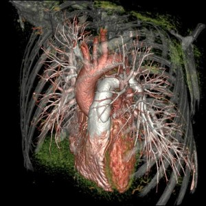 The image from the GE Healthcare Revolution CT scanner shows the patients coronary arteries, aorta, pulmonary arteries, and adjacent intrathoracic structures.