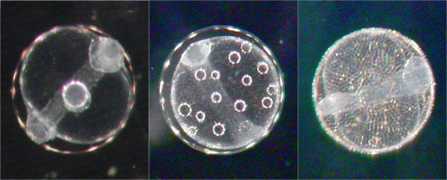 Fish egg samples as seen through a microscope. (Photo: Ron Burton)