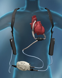 A left ventricular assist device (LVAD)