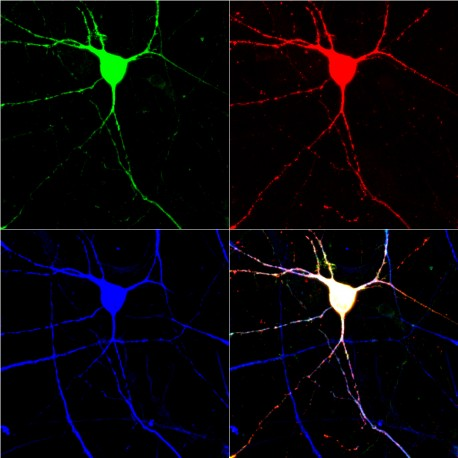 Scientists have created serotonin-signaling neurons from human skin cells.