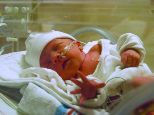 A baby in a neonatal intensive care unit. (Photo courtesy Miracle Babies)