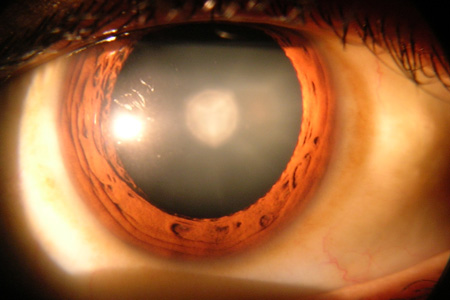 The clouded lens of a cataract in human eye. (Image courtesy of Wikimedia)