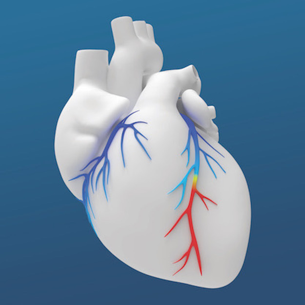 The HeartFlow FFR Analysis is a non-invasive tool that helps Scripps cardiologists identify possible areas of coronary artery blockage. (Courtesy of Scripps Health)